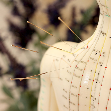 Acupuncture-Circle2-Bare-Motion-Chiropractic